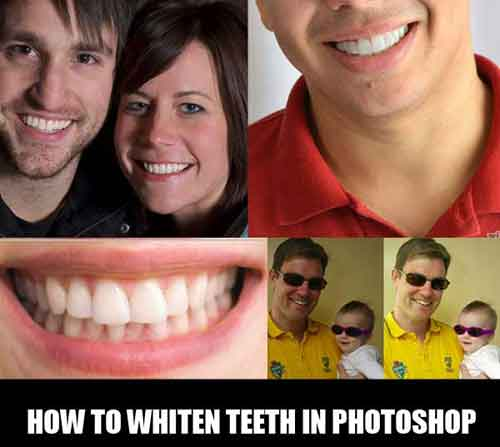 photoshop teeth whitening